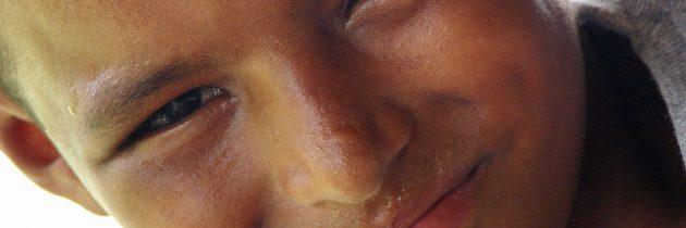 Zapalenie opryszczkowate skóry